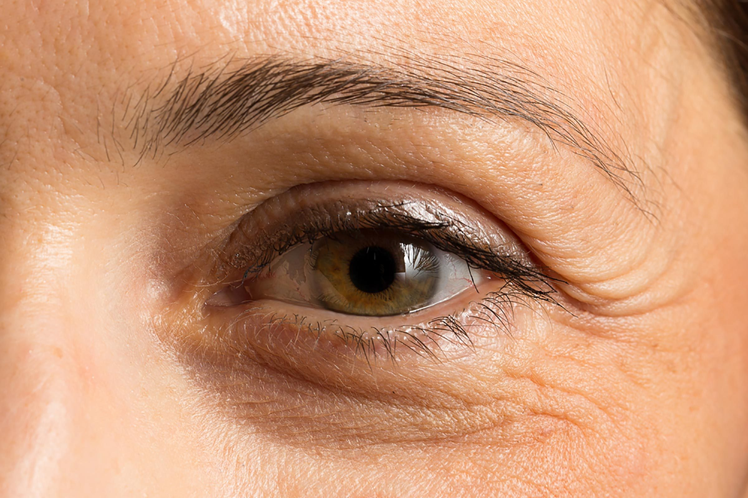 Closeup of a woman's under-eye dark circle.