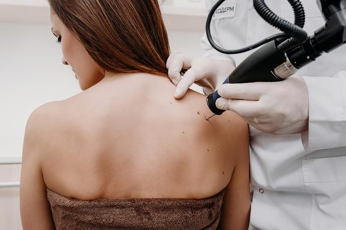dermatologist treating woman for skin tags or cancer