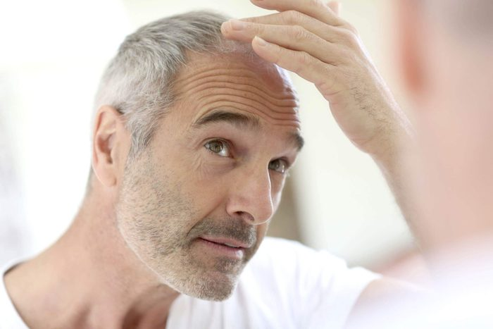 Man checking his receding hairline in the mirror.