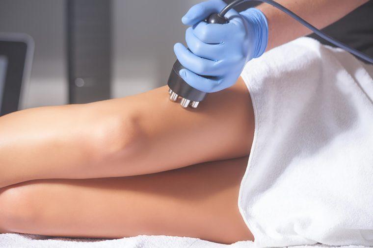 Cellfina treatment