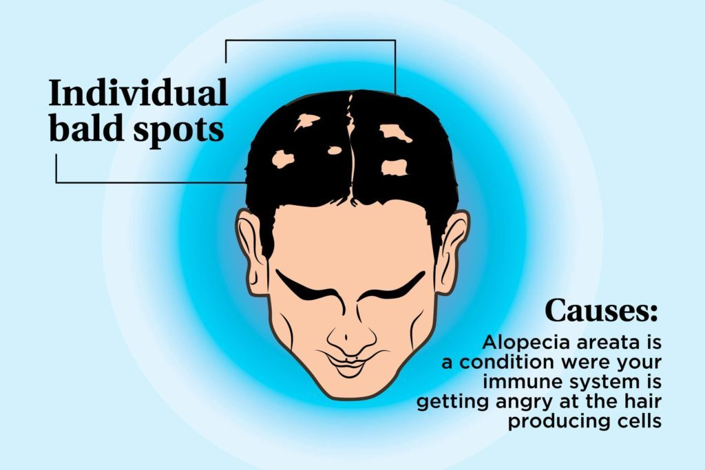 illustration of a person's scalp indicating bald spots