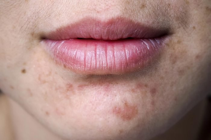 Close-up of acne scars.