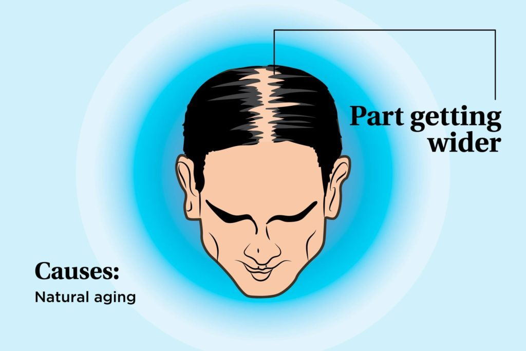 illustration of a person's scalp indicating the part widening