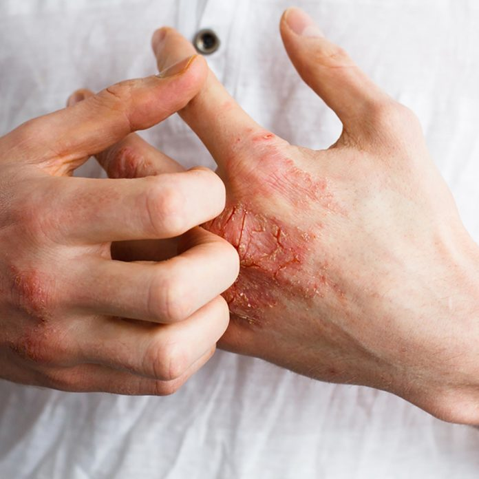 The Best Eczema Cream for Your Type of Eczema