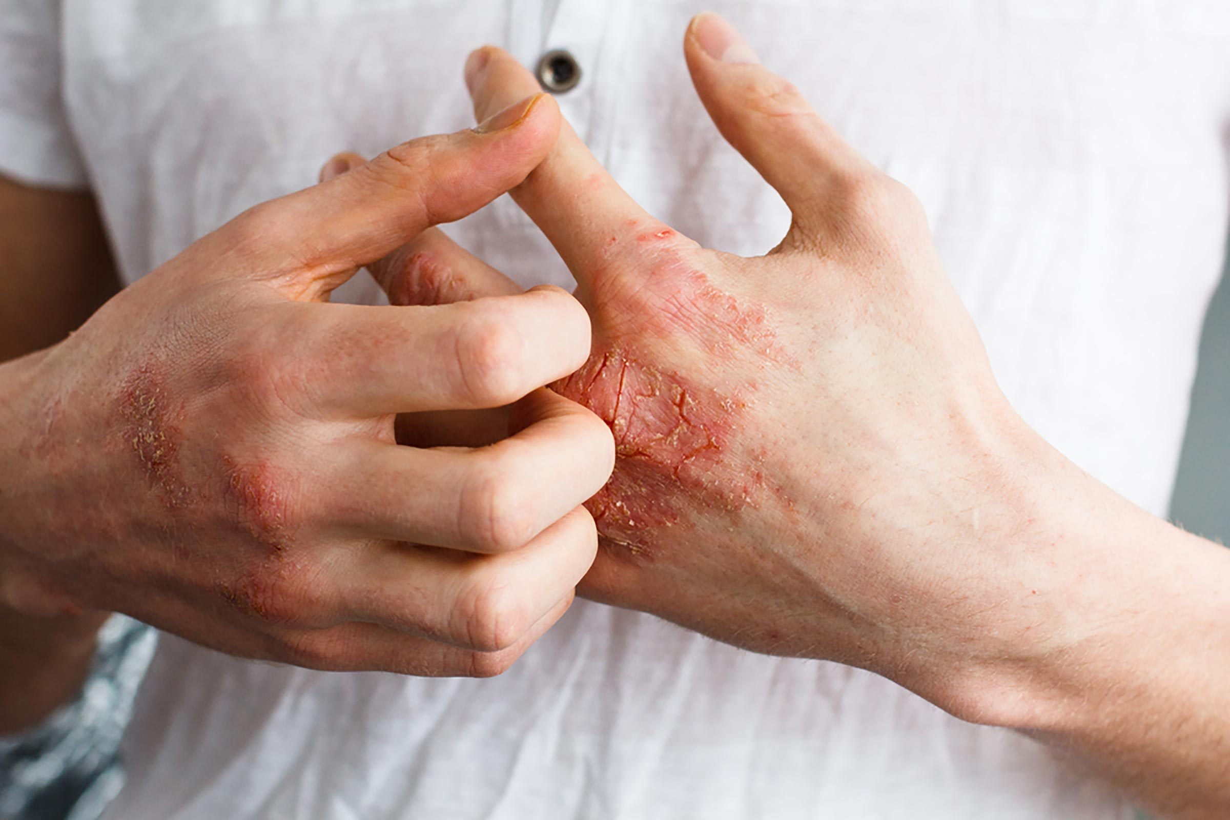 Red, itchy eczema on someone's hands.