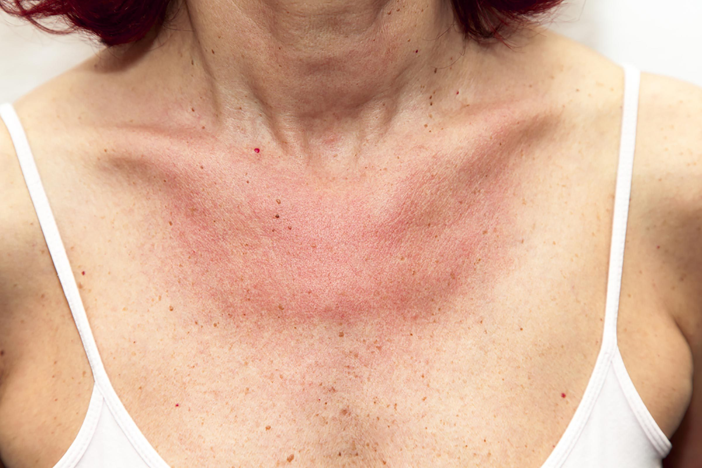 woman in tank top with sunburned chest, freckles