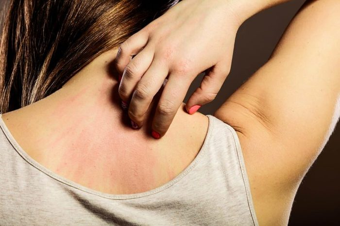 woman itching itching red patches on her upper back