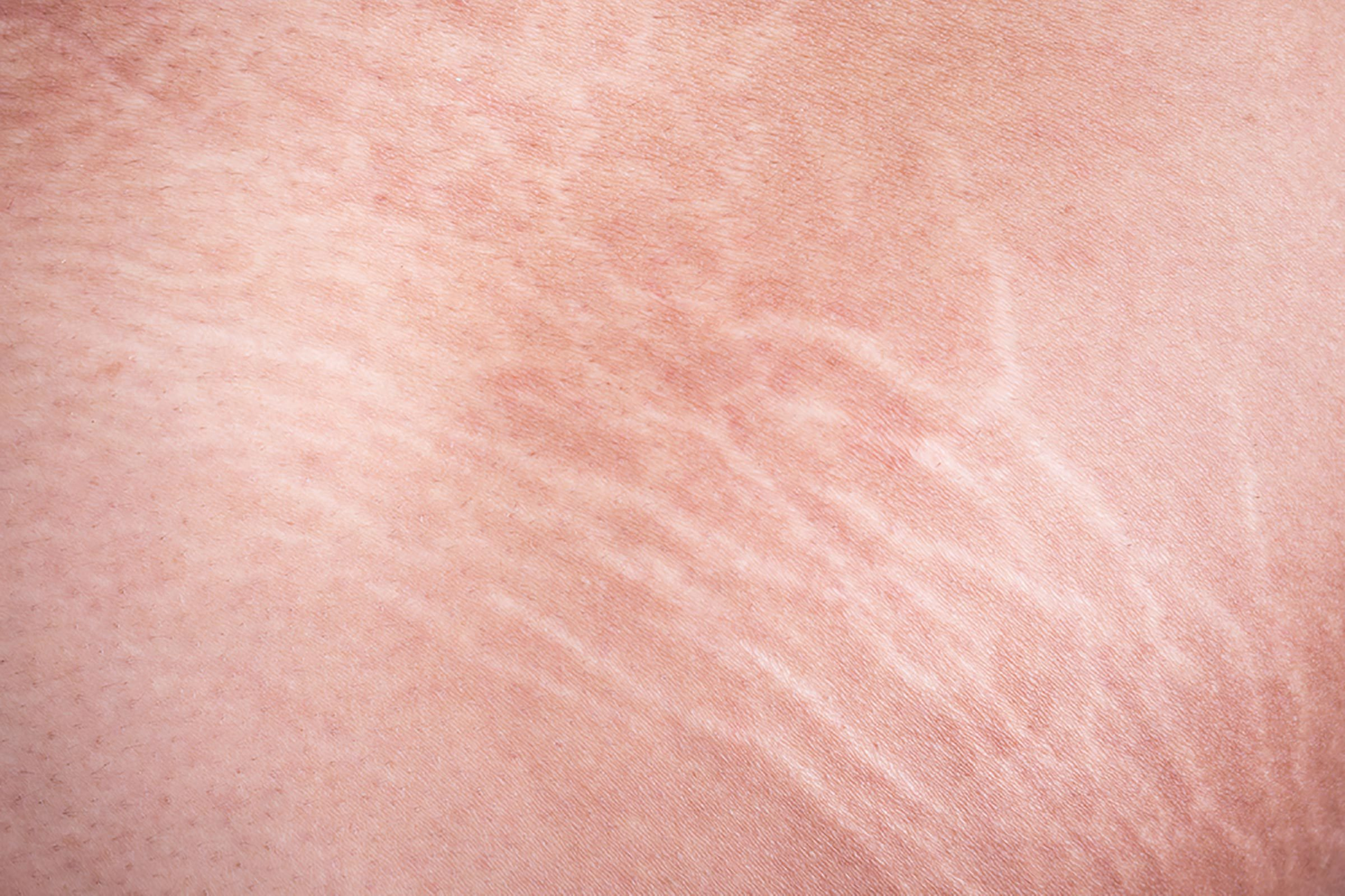 Closeup of stretch marks.