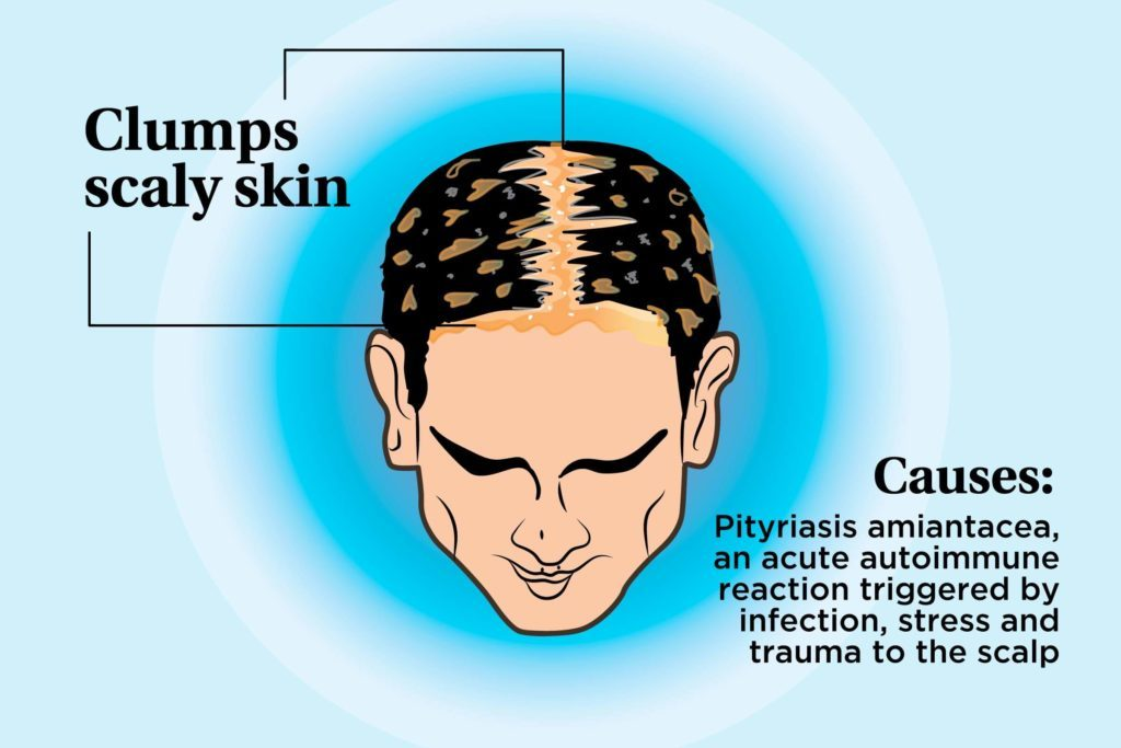 illustration of a person's scalp indicating clumps of scaly skin