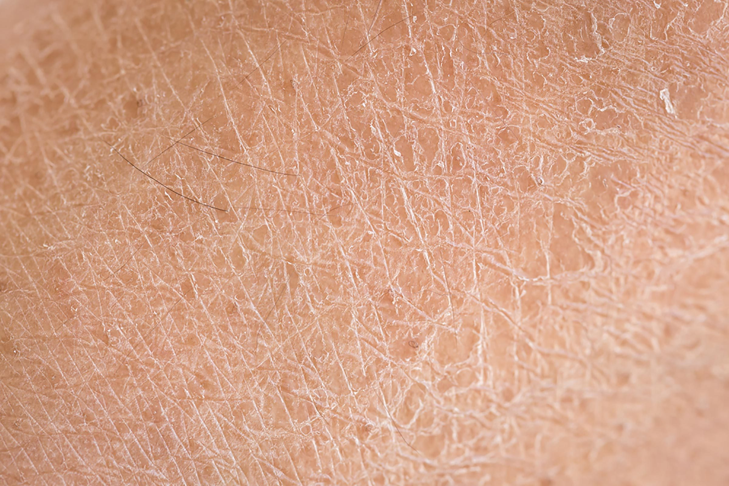 Cracked, dry skin.