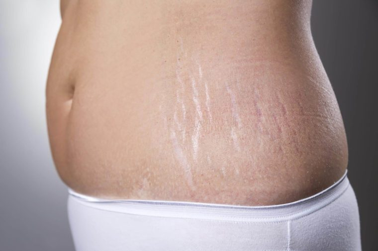 Stretch marks on tummy