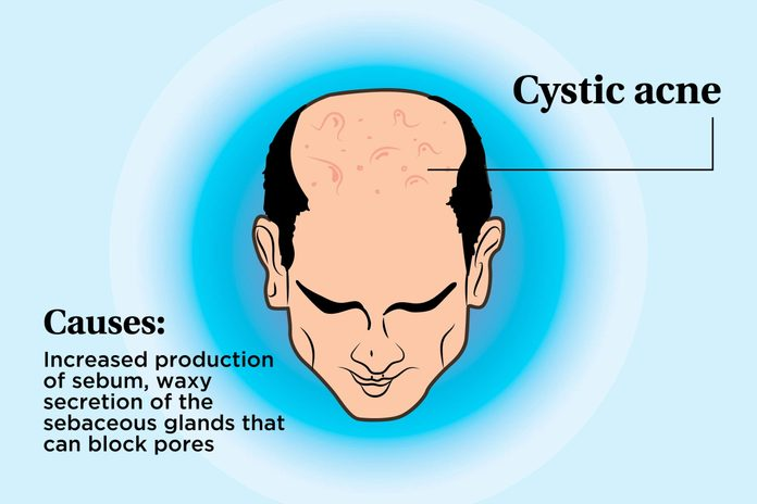 illustration of a person's scalp indicating cystic acne