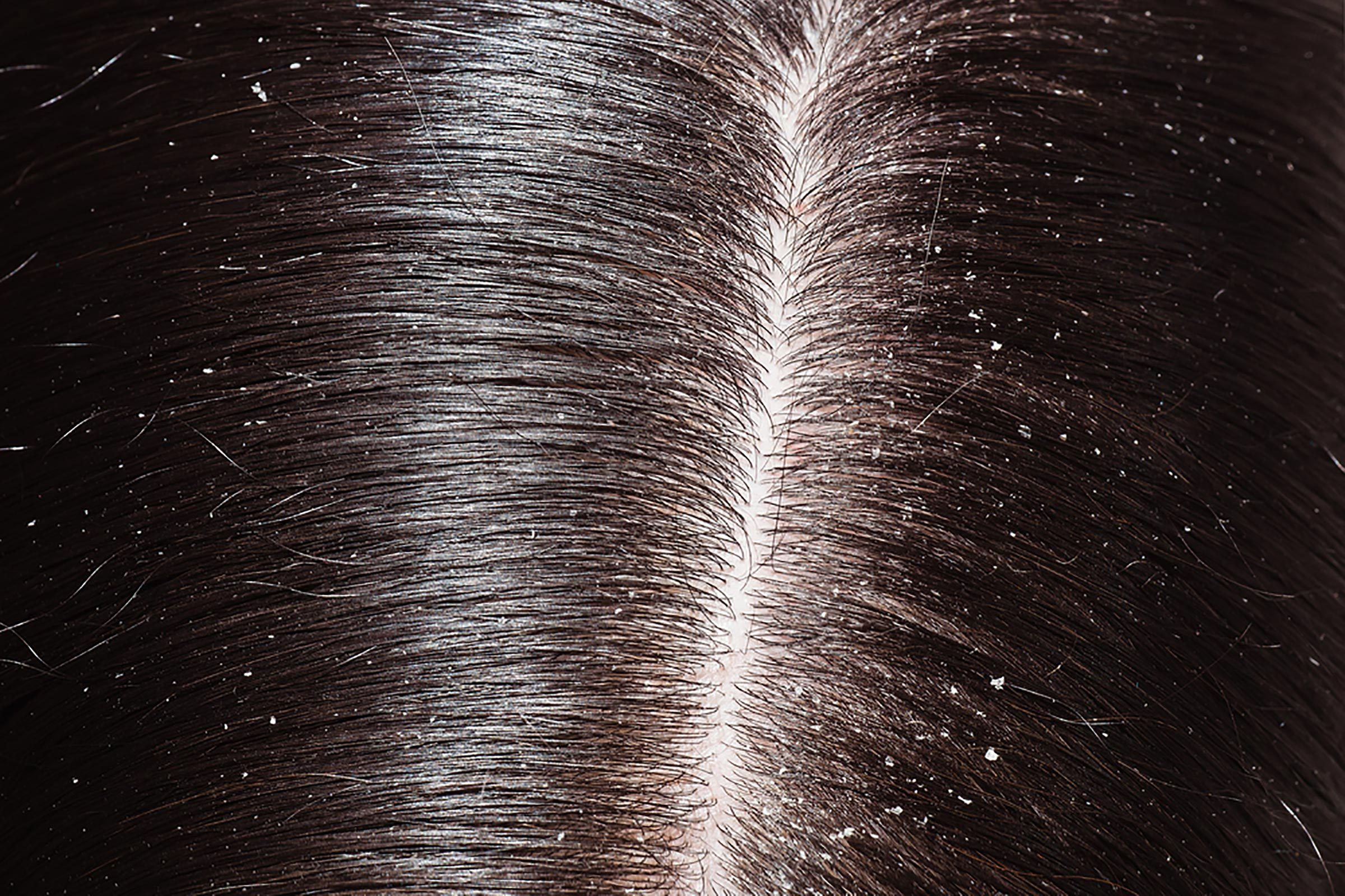 Dandruff along someone's hair part line.