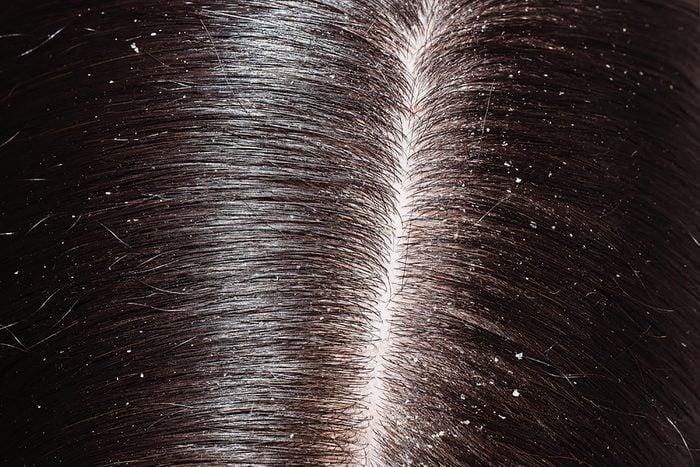 Dandruff along someone's hair part line.