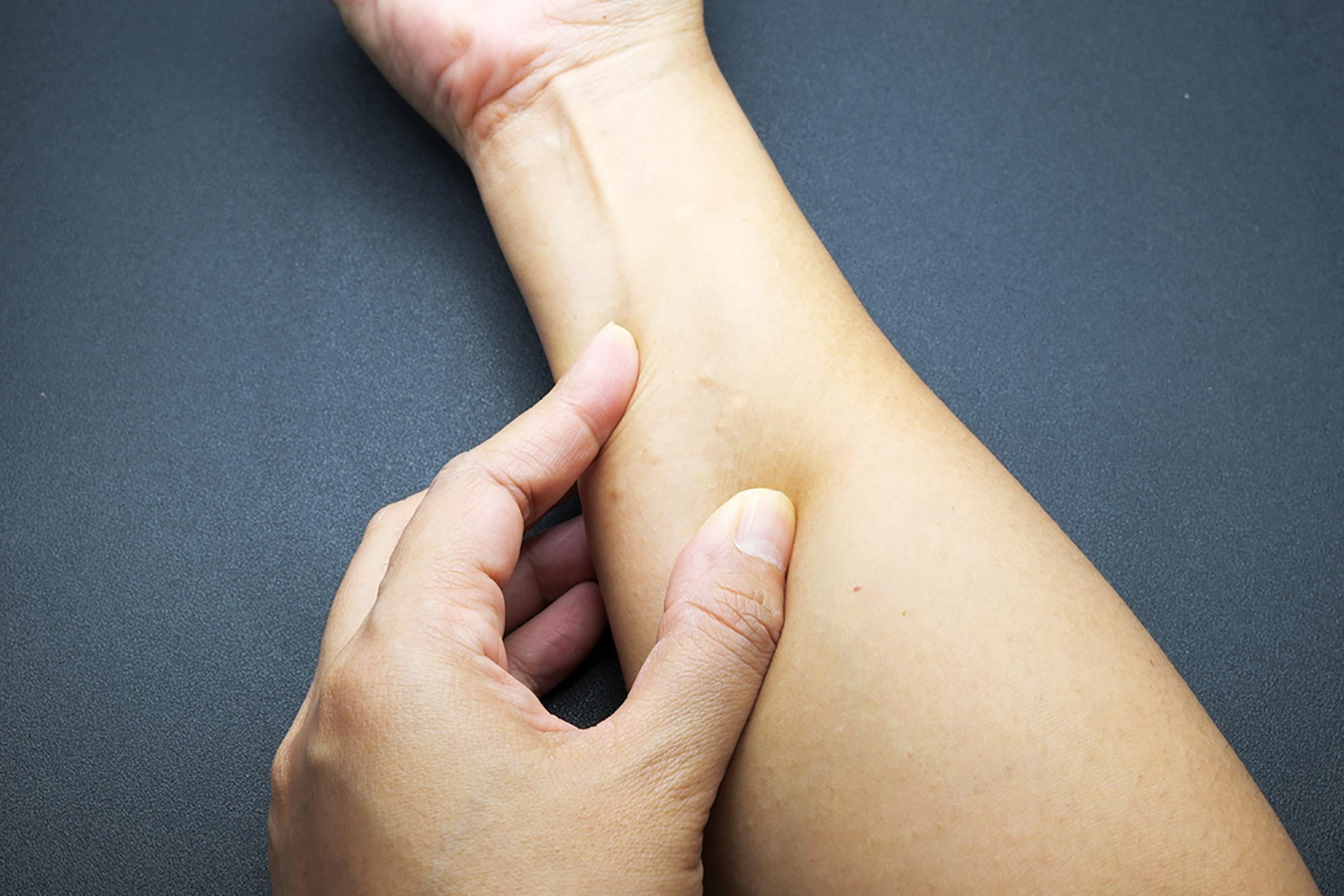 What Doctors Wish You Knew About Ganglion Cysts | The Healthy