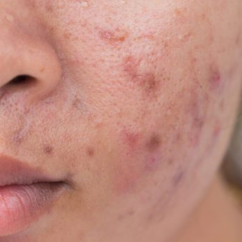 9 Reasons Your Skin Hates You