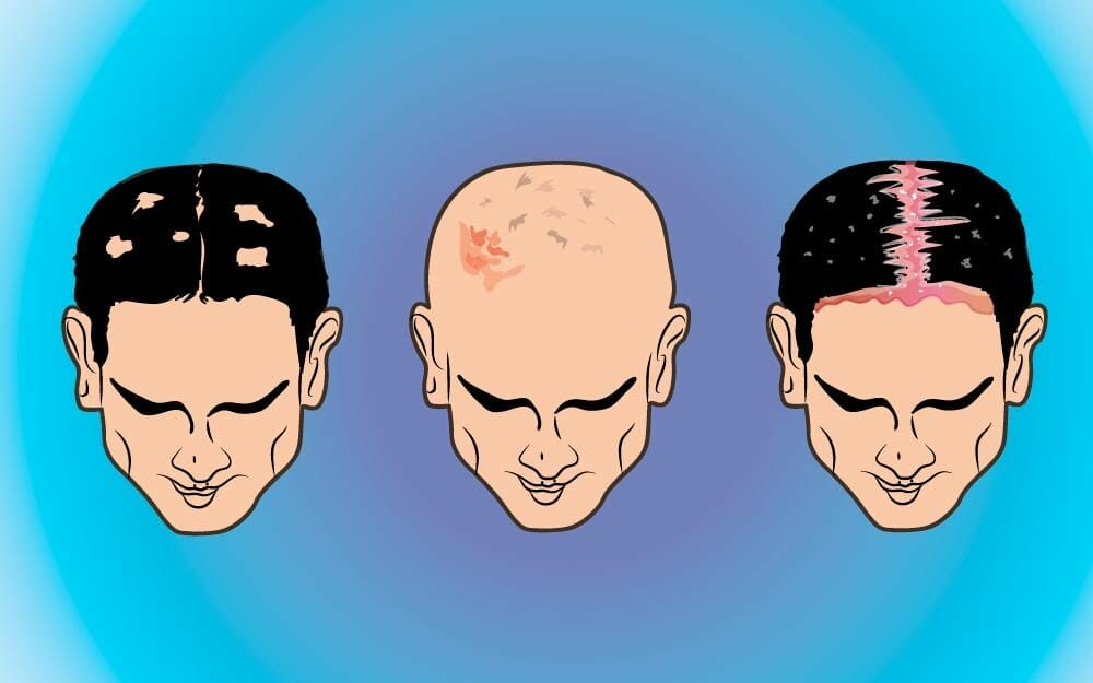 Scalp Conditions You Definitely Don't Want to Ignore | The
