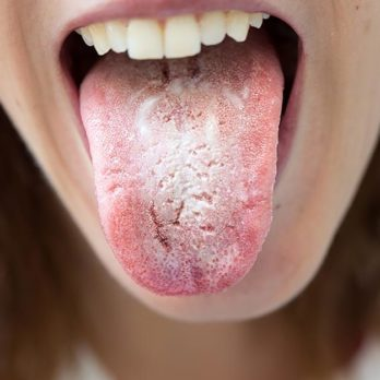 10 Natural Remedies for Thrush in the Mouth