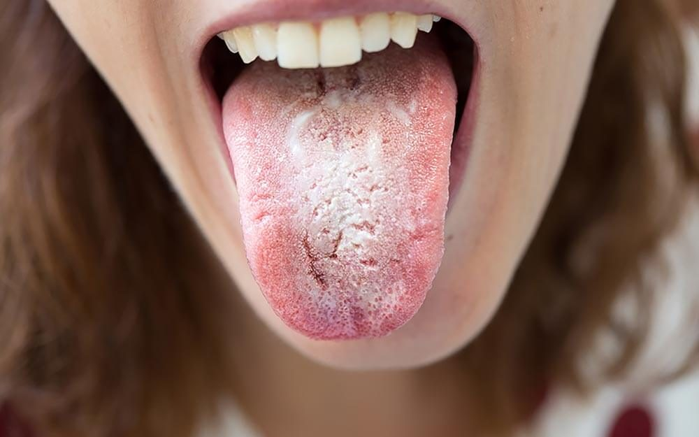 Natural Remedies for Thrush in Mouth | The Healthy