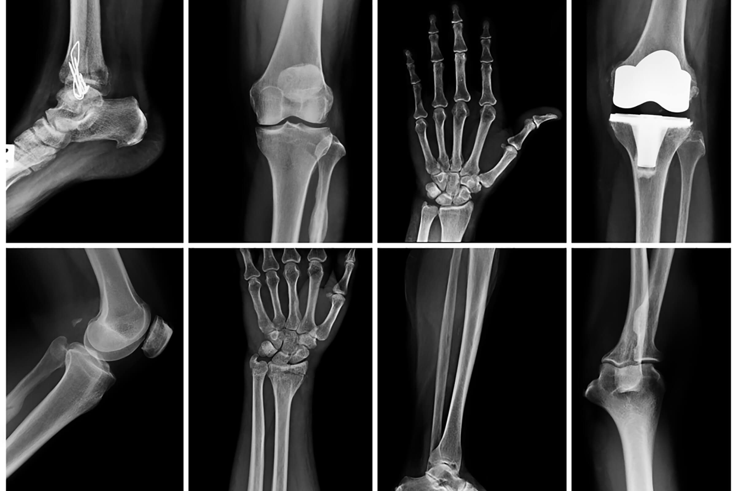 bone X-rays