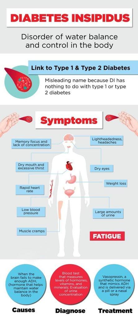 diabetes insipidus chart