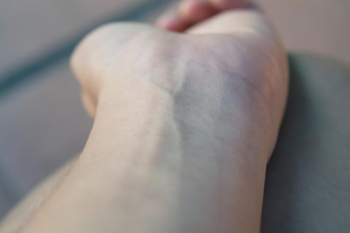 veins on wrist