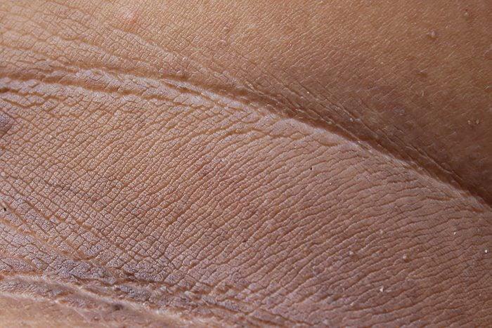 dark patches on skin