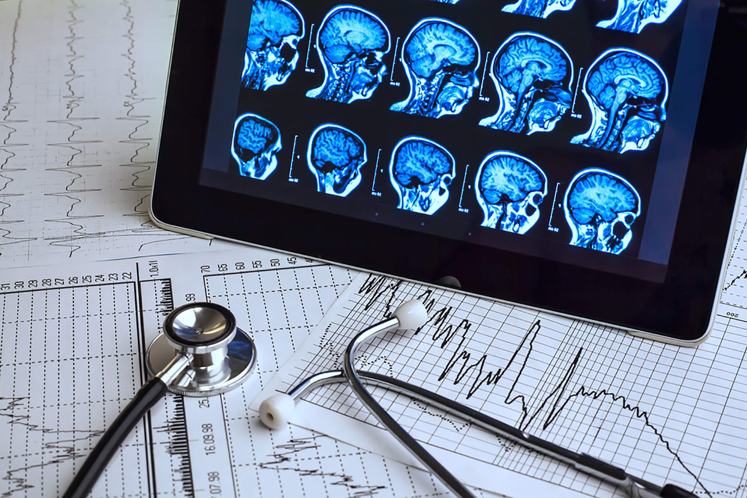 brain scans and images with stethoscope