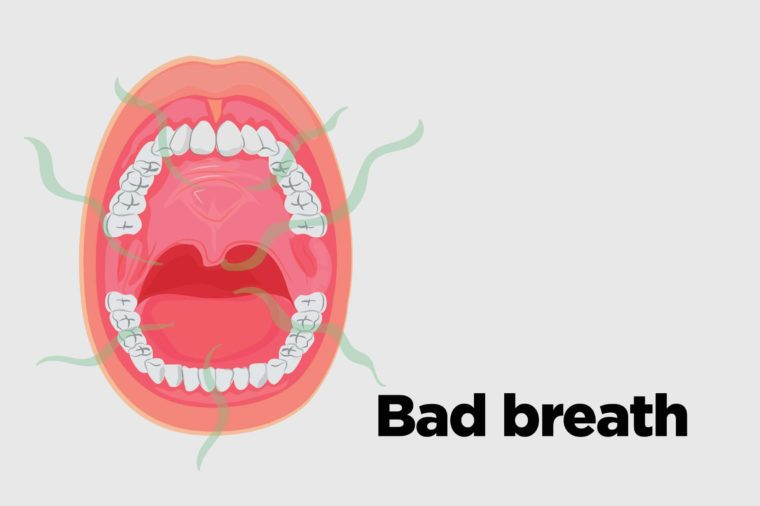 Oral Cancer Symptoms: 13 Signs You Might Ignore | The Healthy