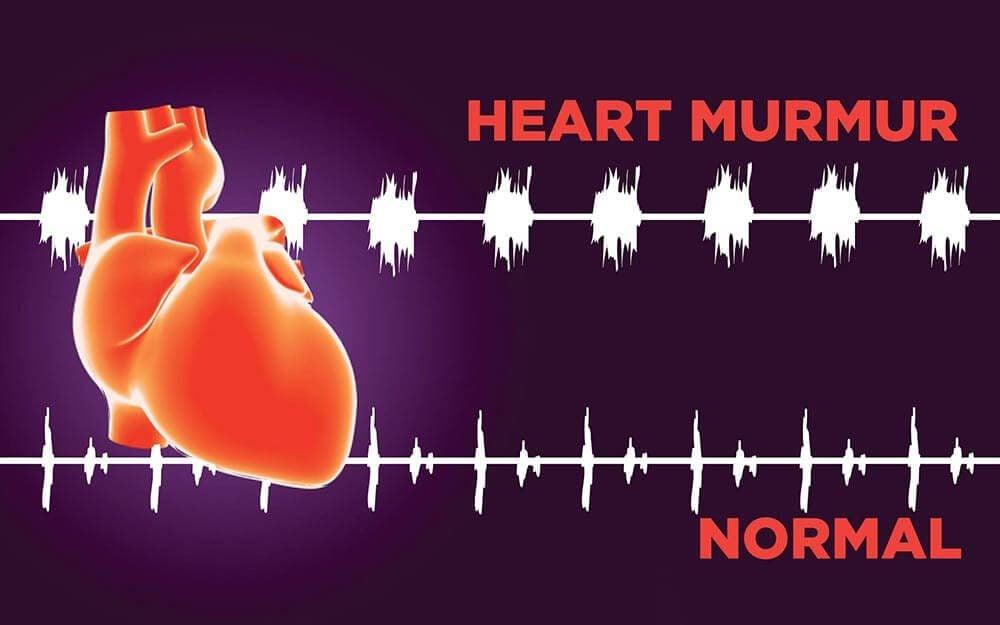 illustration of heart and cardiac rhythms--normal
