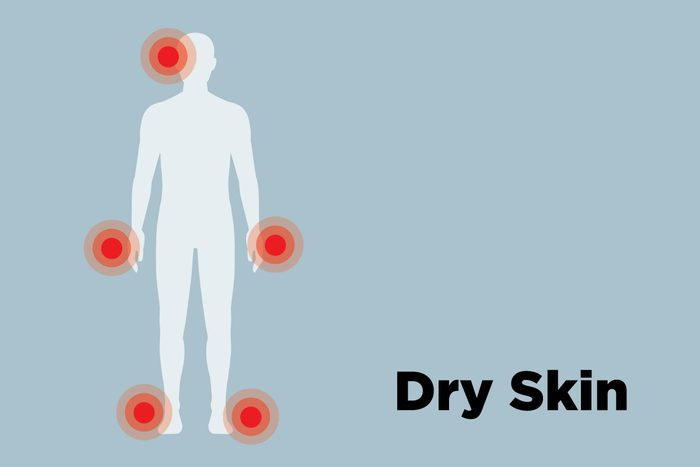 illustration of male body with dry skin hot spots