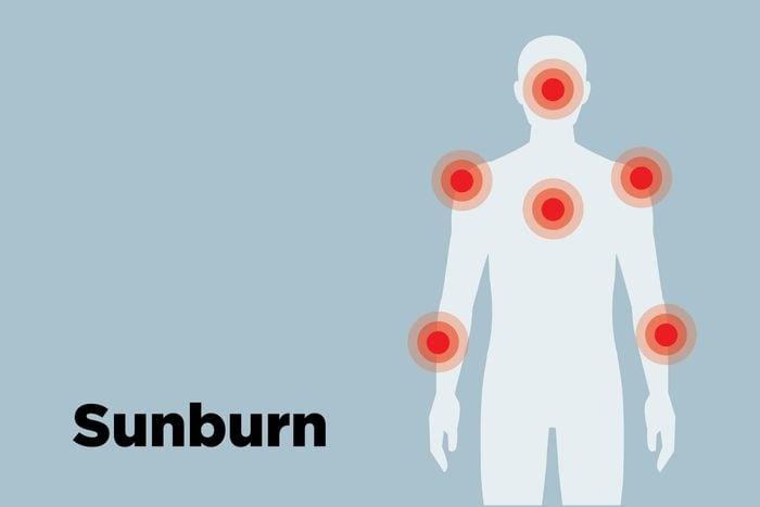 outline of body showing sunburn hot spots