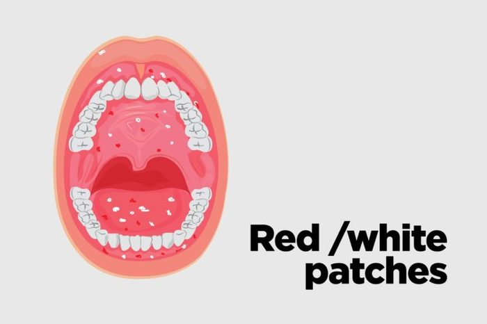 Illustration of an open mouth with red and white patches on the tongue.