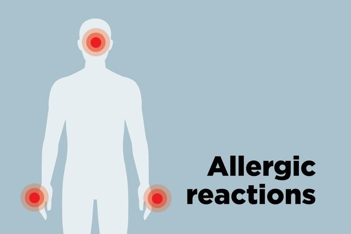 outline of body showing allergic reaction hotspots