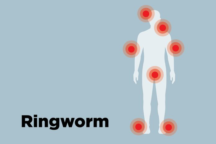 outline of body showing ringworm hotspots