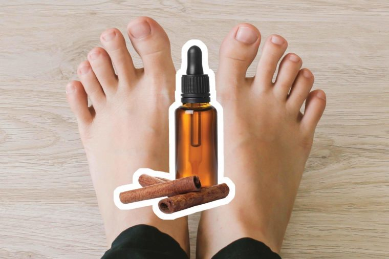 Cinnamon oil over feet