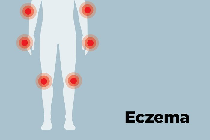 outline of body showing eczema hotspots