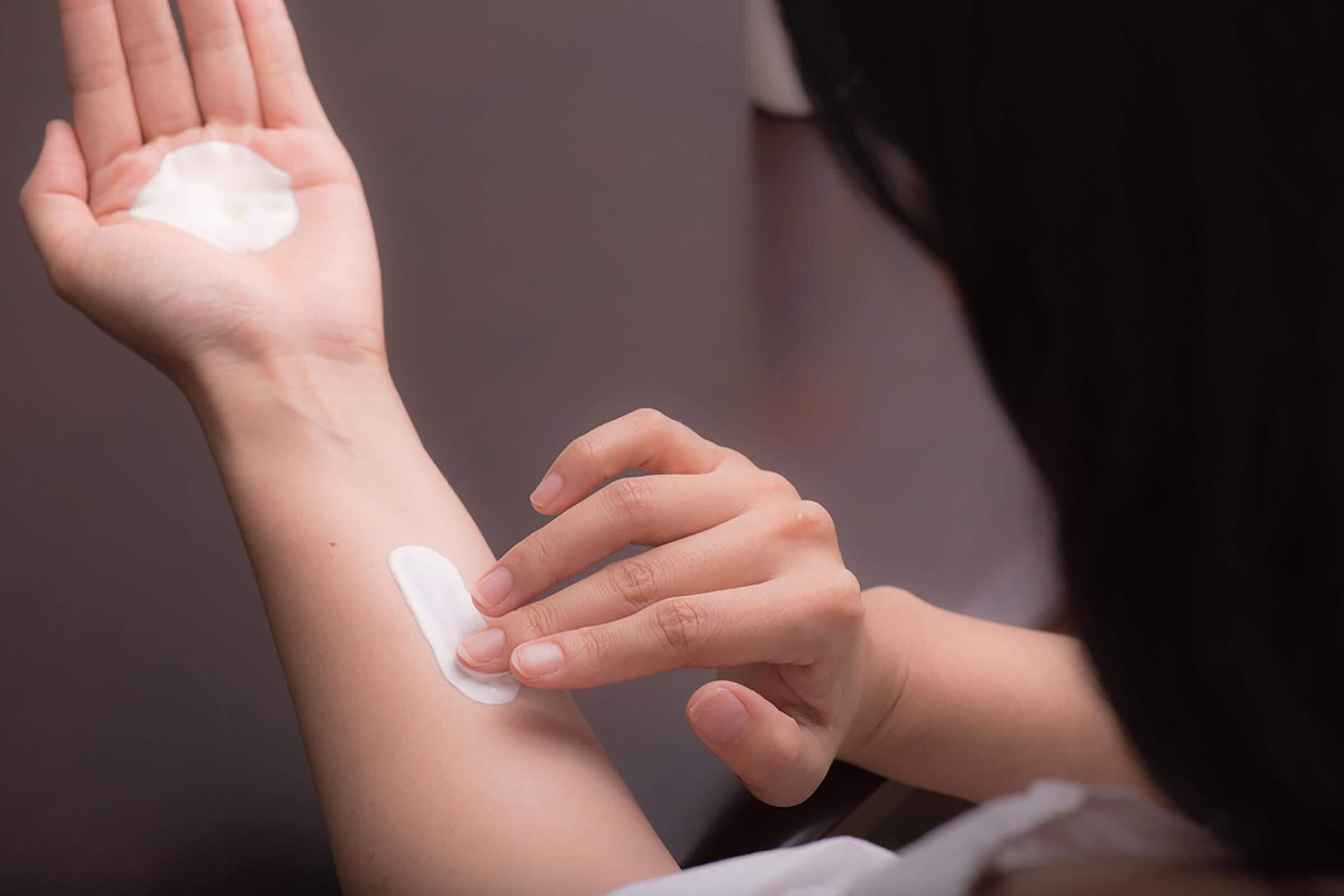 Eczema-cream