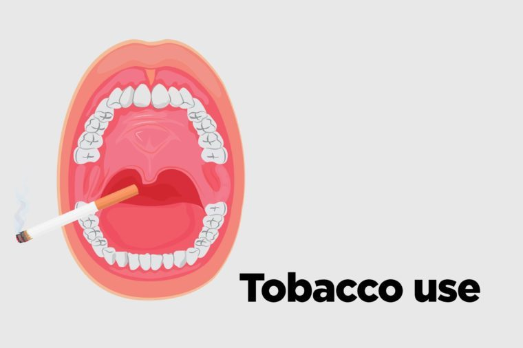 Illustration of an open mouth with a cigarette poking out.