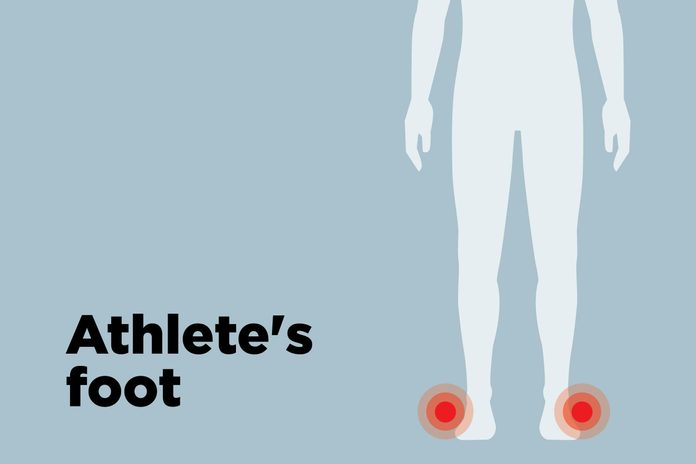 outline of body showing athlete's foot hotspots