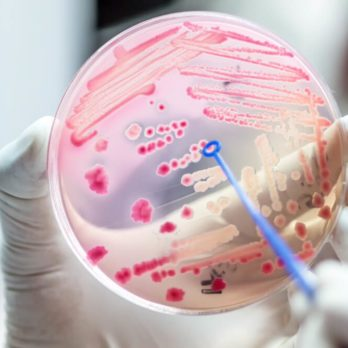 13 Silent Signs Your Microbiome Could Be in Trouble