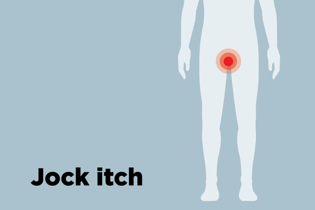 outline of body showing jock itch hotspots