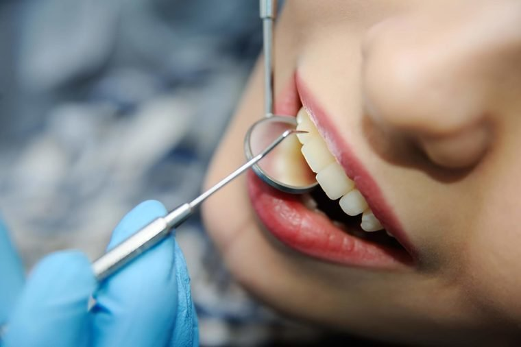 Secrets Your Dentist Will Never Tell You | The Healthy