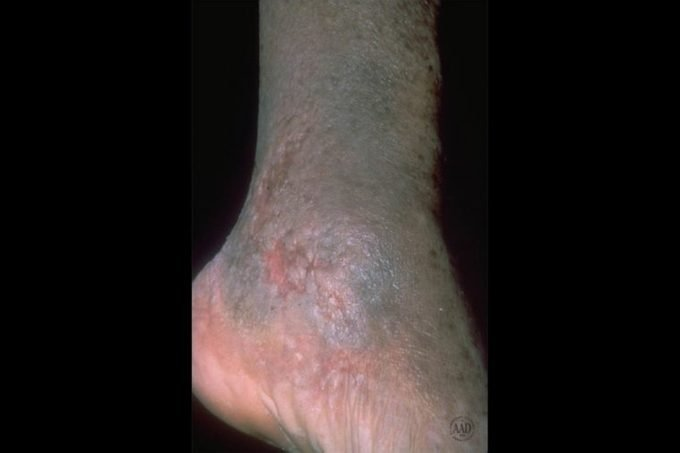 close-up of foot with stasis dermatitis