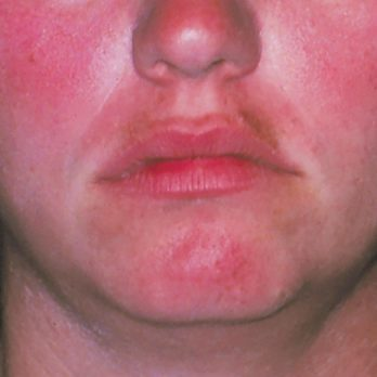 6 New Rosacea Treatments That Will Help End the Redness