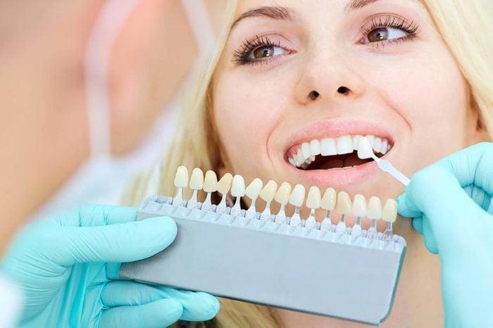 woman trying on veneers for her teeth