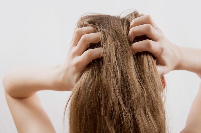woman with dry itchy scalp