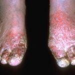 9 Proven Treatments for Stasis Dermatitis