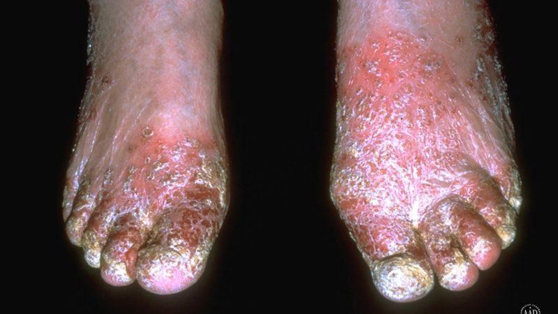 Stasis-Dermatitis