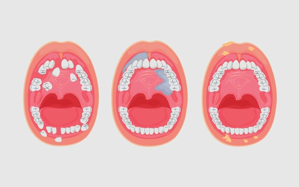 13 Silent Signs of Oral Cancer You Shouldn't Ignore
